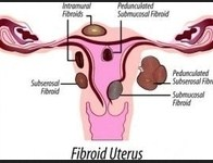 Uterine Fibroid Symptoms: Weight Gain' Bleeding' Pressure and Pain